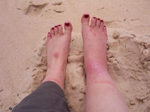 douleur et gonflement dessus du pied